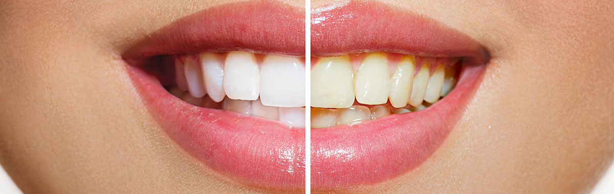 teeth whitening bleach
